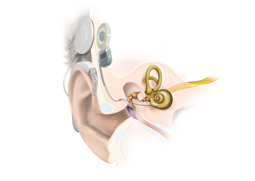 Cochlear Implants for Hearing Loss